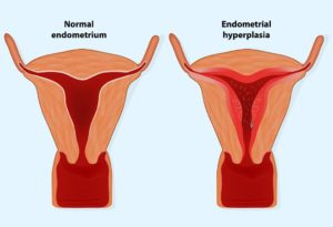 How to Increase Endometrial Thickness