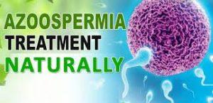 The Treatment for Non-Obstructive Azoospermia