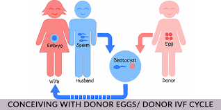 IVF with Donor Eggs Process