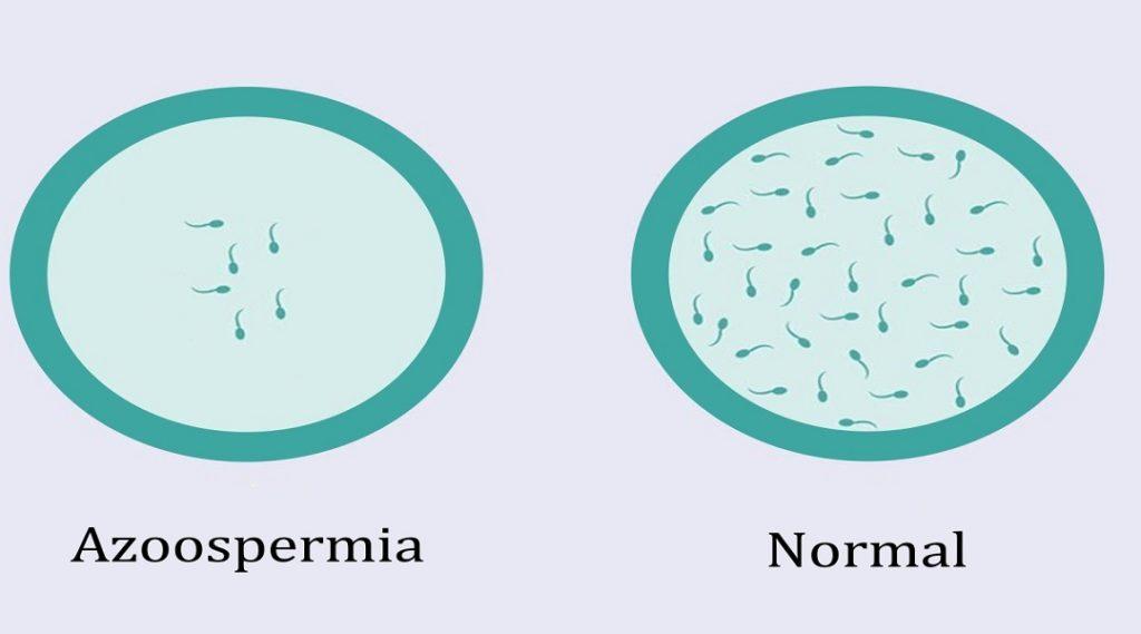 Treatment of azoospermia