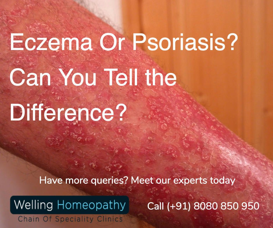 Eczema Psoriasis Treatment Beli Murah Eczema Psoriasis: Eczema Or Psoriasis: Can You Tell The Difference?