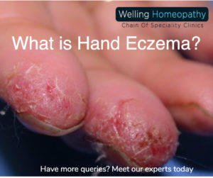 What is Hand Eczema? 1