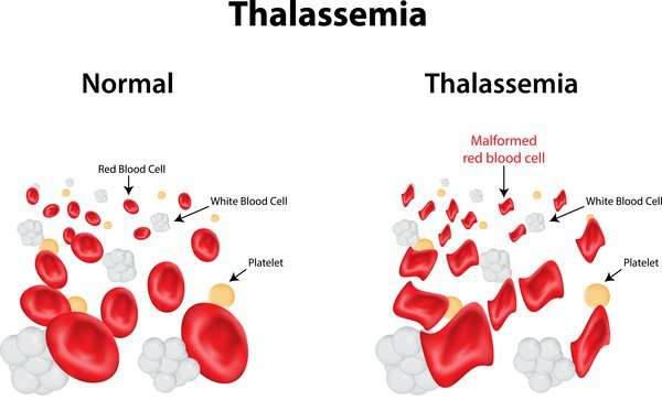 treatment of Thalassemia