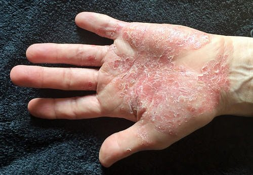 How To Treat Palmoplantar Psoriasis In Homeopathy? 1