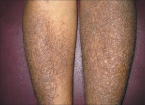 What is the best treatment for lichen planus?
