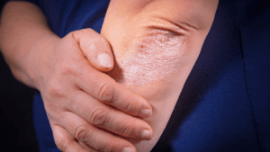 Psoriasis - Symptoms, Causes and Treatment 1
