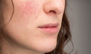 How to treat eczema on face?