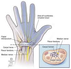 Homepathy treatment of carpal tunnel syndrome