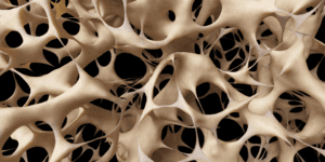 Homeopathy treatment of osteoporosis