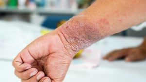 Homeopathy doctor for skin diseases