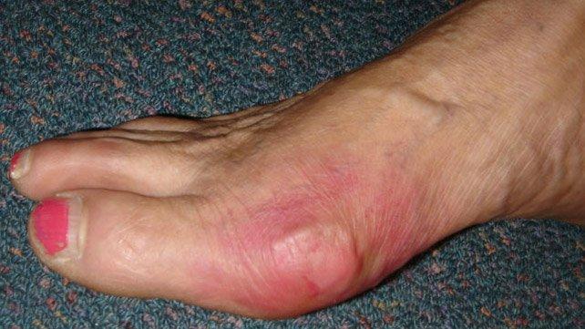 642x361_SLIDE_1_Gout_Symptoms
