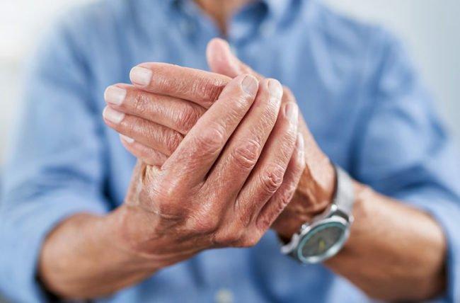 arthritisMyths-1164168739-770x533-1-650x428