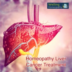 Homeopathy treatment of liver cancer