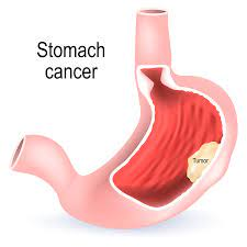 Treatment of Stomach Cancer