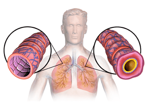 Homeopathy Doctor for Asthma Treatment