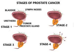 Symptoms of Prostate Cancer? What PSA Levels Should I Have? 1