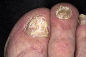 How to Treat Psoriasis: The Ultimate Comprehensive Guide 8