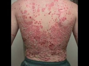 How to Treat Psoriasis: The Ultimate Comprehensive Guide 4