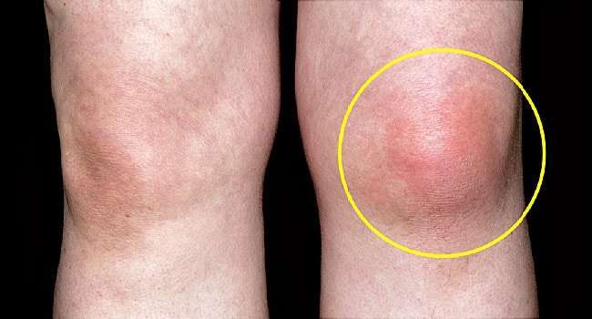 homeopathic medicine for gout treatment