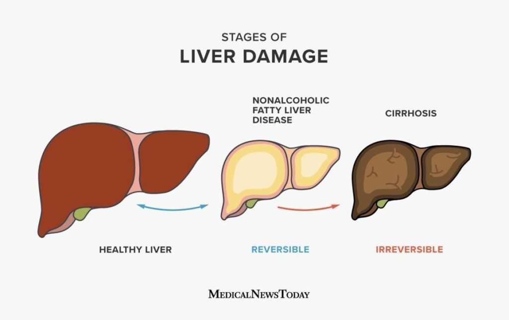 homeopathy-treatment-of-fatty-liver-disease