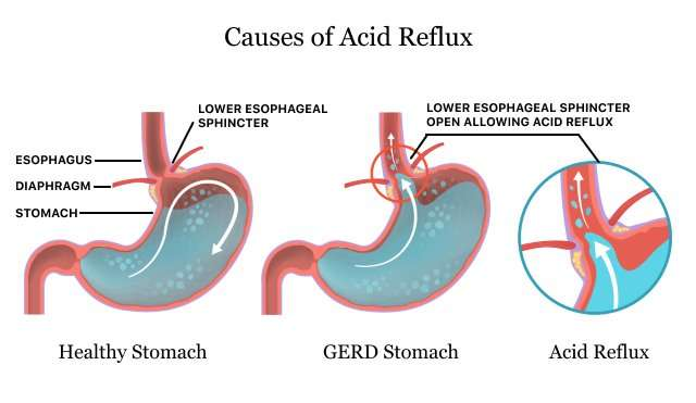 Natural Remedies For Acid-Reflux