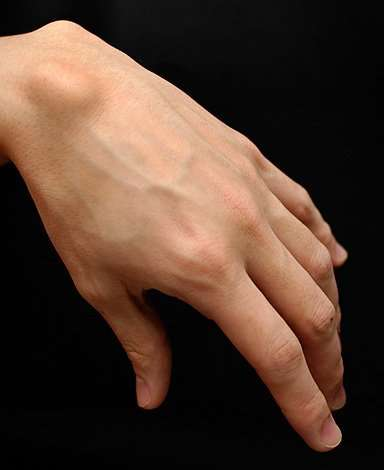 Homeopathy remedies for Ganglion cyst