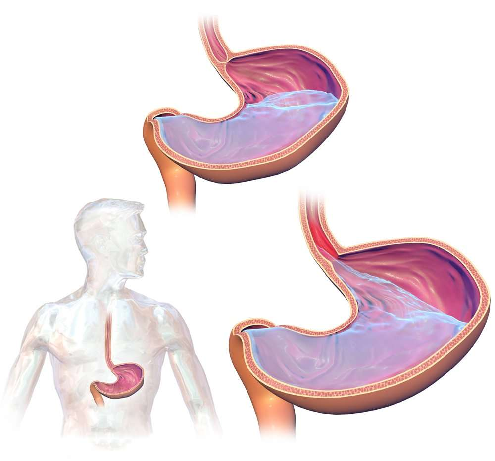 Natural treatment For Acid-Reflux
