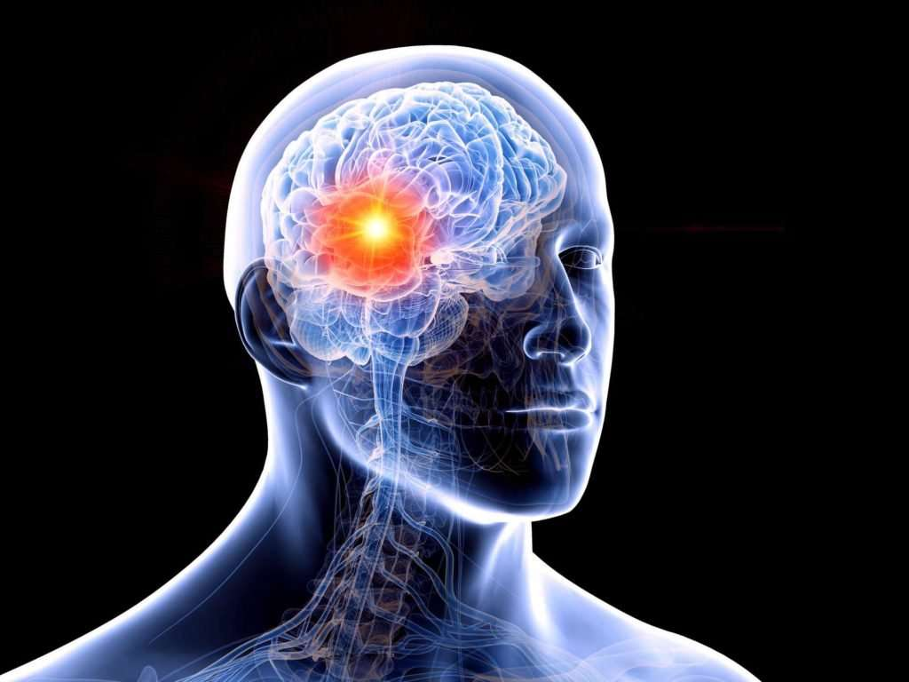 Homeopathy treatment of brain cancer