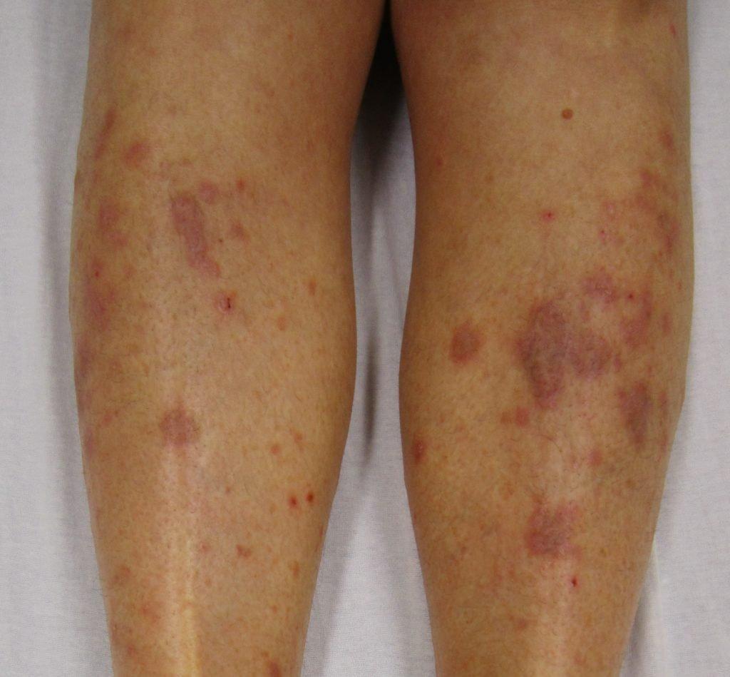 Homeopathy treatment for Lichen_Planus