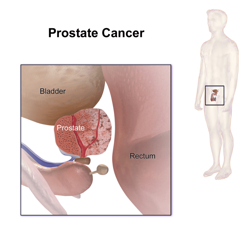 Prostate Cancer: Everything You Need to Know 1