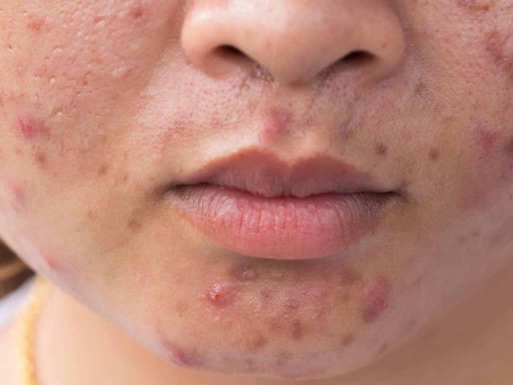 Homeopathy medicines for acne rosacea