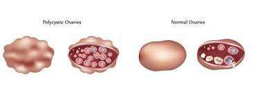 Homeopathy treatment of PCOS