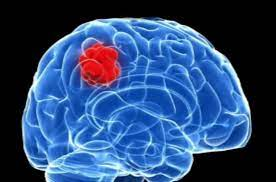 What Causes Brain Cancer