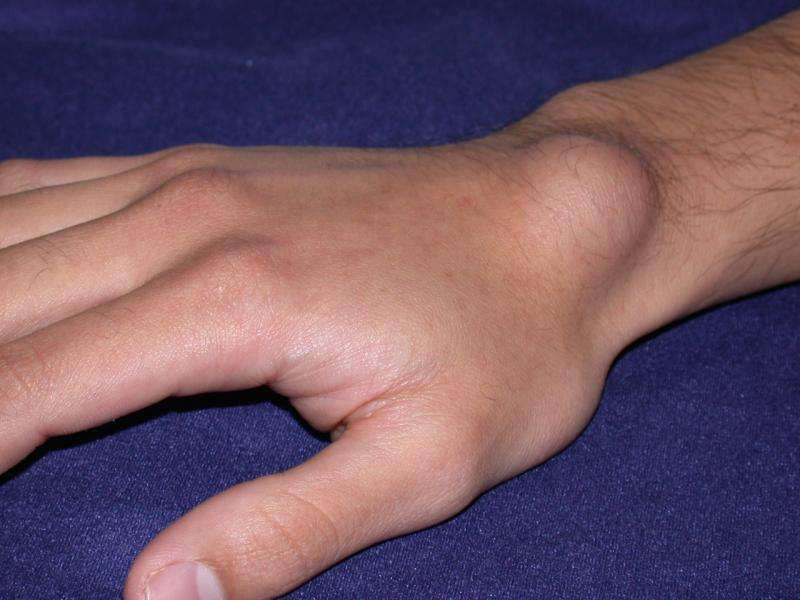 causes of ganglion cyst