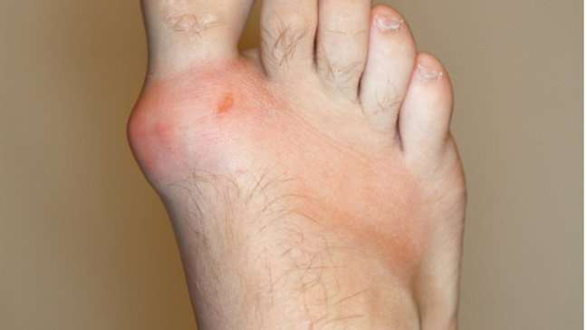 Homeopathy treatment of Gout