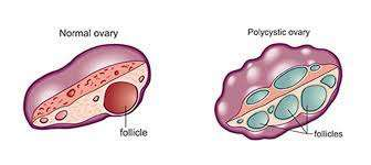Homeopathy remedies of PCOS