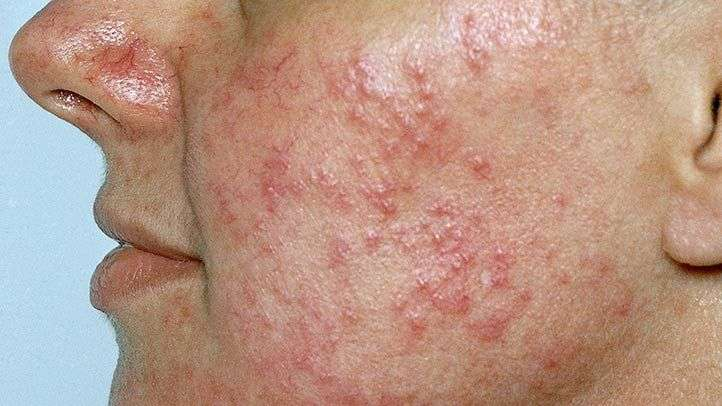 Homeopathy treatment of acne rosacea