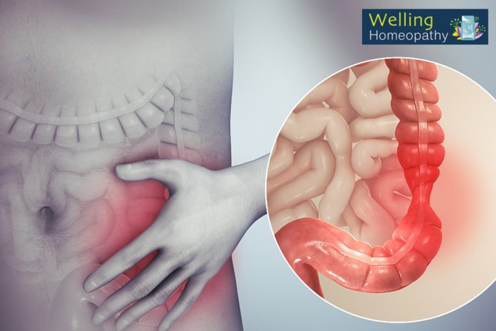 Cause of Irritable bowel syndrome