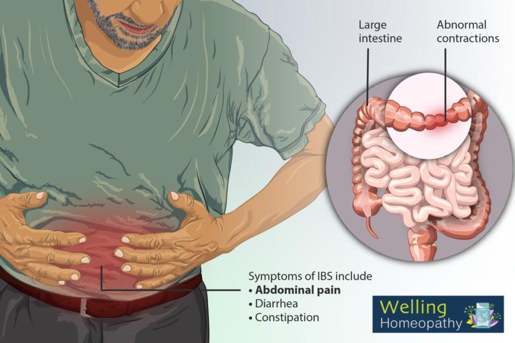 Treatment of Irritable Bowel Syndrome
