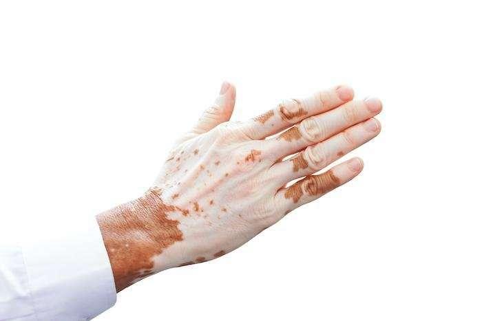 homeopathy medicines of vitiligo