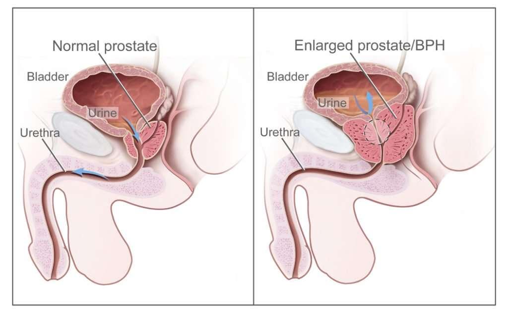 Homeopathy Treatment of benign prostatic hyperplasia