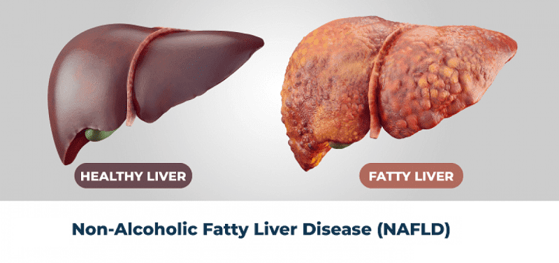 Homeopathy Treatment of Fatty Liver Disease
