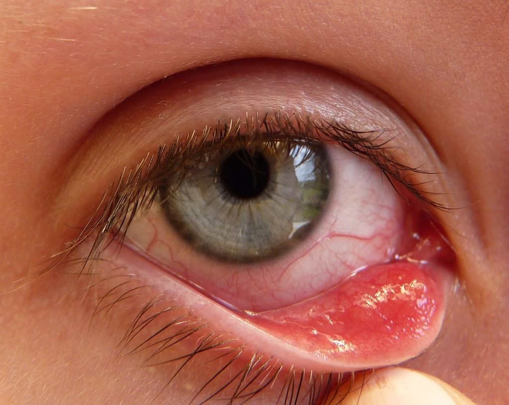 Homeopathy treatment of Chalazion