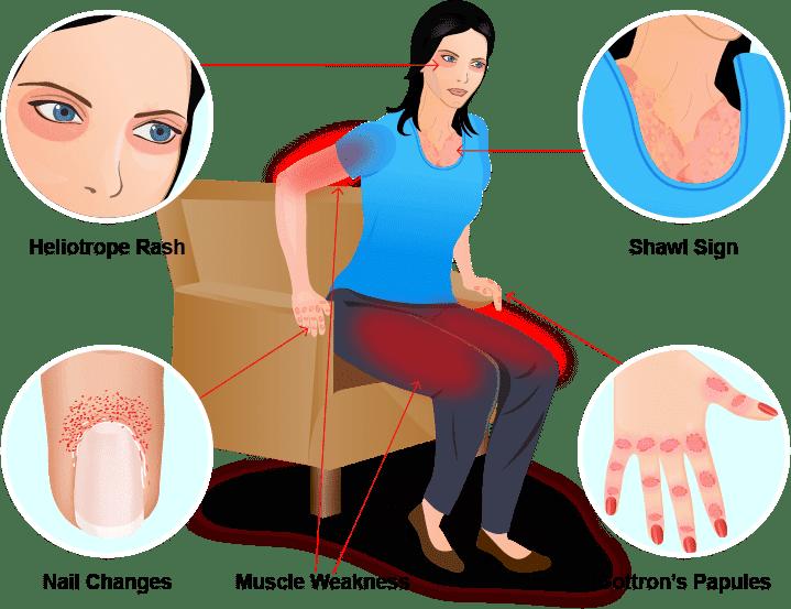 Homeopathy treatment of dermatomyositis