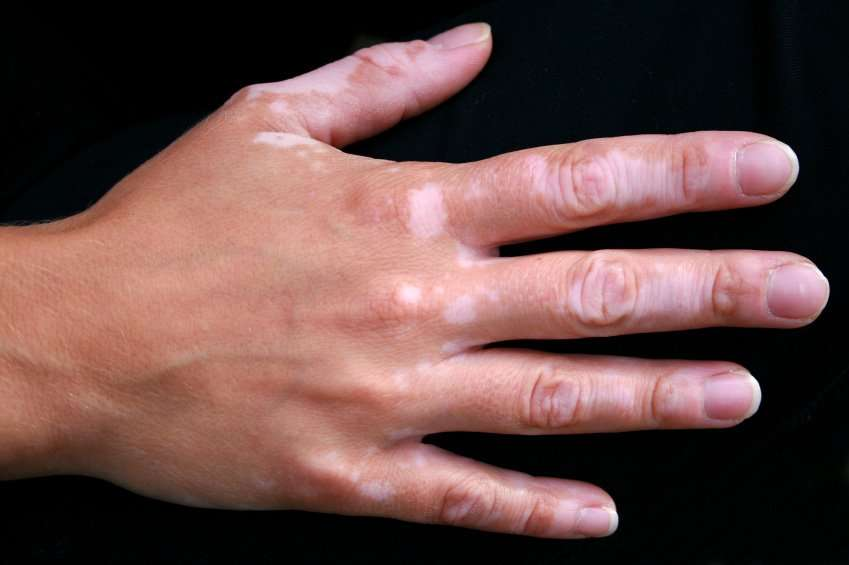 Is Vitiligo Curable