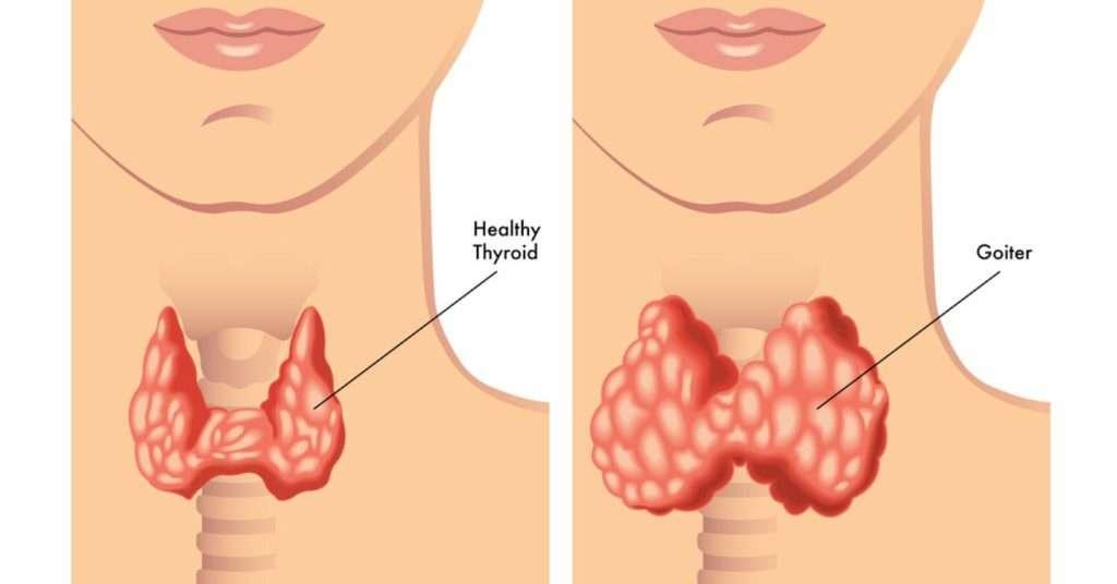 Treatment Of Hypothyroid