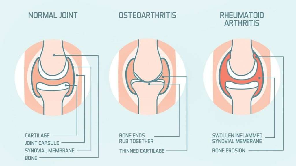 Homeopathy Treatment of Osteoarthritis