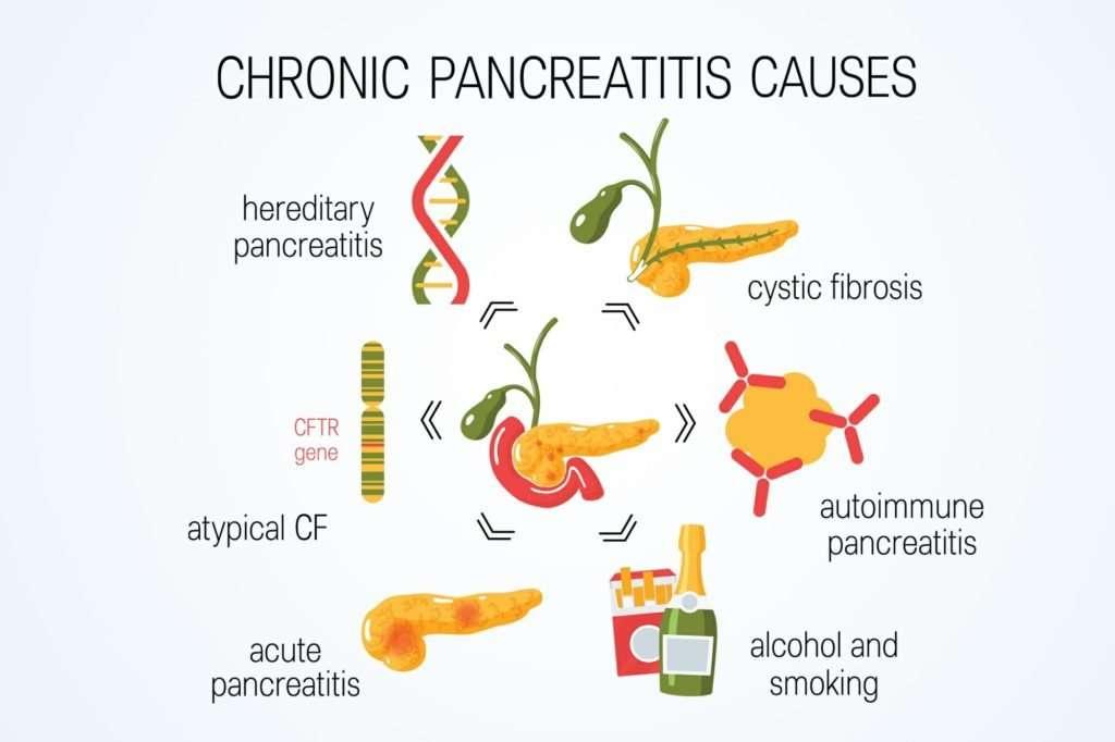 Homeopathy Treatment of chronic pancreatitis