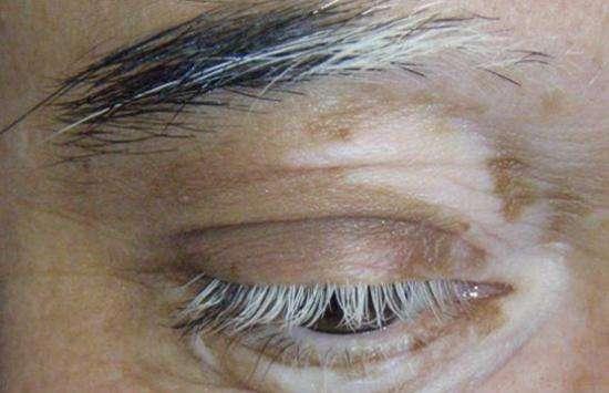 homeopathy treatment of Vitiligo On Face