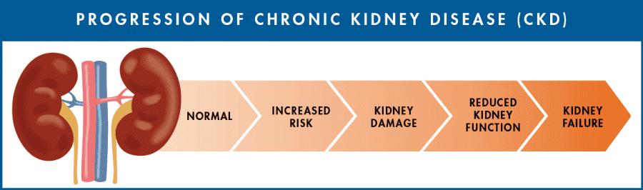 Homeopathy Treatment of Chronic Kidney Disease